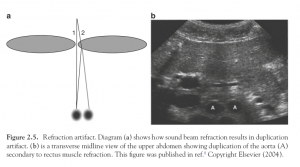 Effects of refraction in ultrasonography